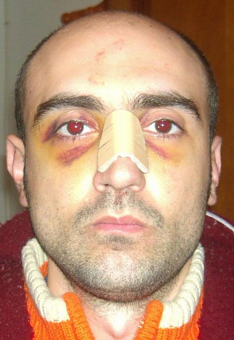 M. A. G. tras la agresión en Nochebuena 2005.